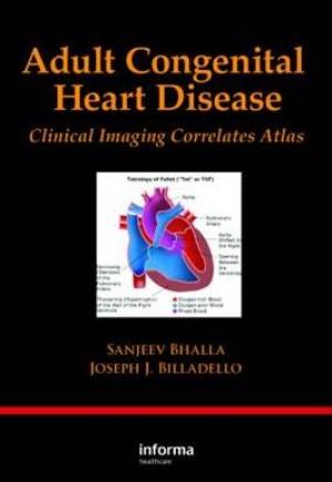 congenital heart disease in adults - 300×435