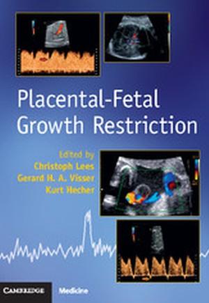 Placental-Fetal Growth Restriction