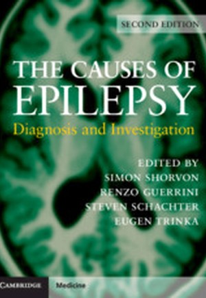 The Causes of Epilepsy