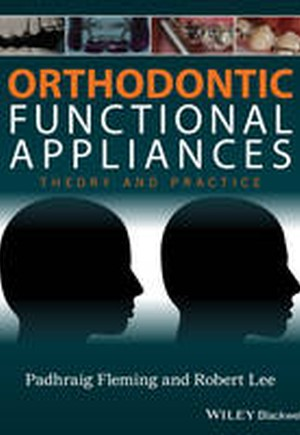 Orthodontic Functional Appliances: Theory and Practice