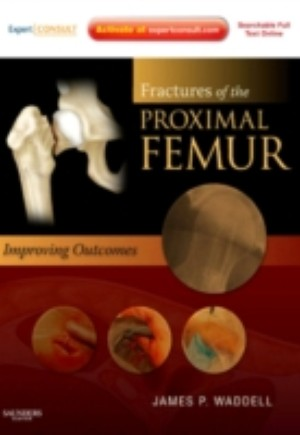 Fractures of the Proximal Femur: Improving Outcomes E-Book