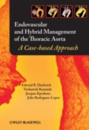 Endovascular and Hybrid Management of the Thoracic Aorta