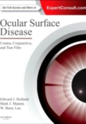 Ocular Surface Disease: Cornea, Conjunctiva and Tear Film E-Book