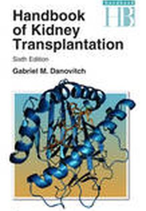 Handbook of Kidney Transplantation