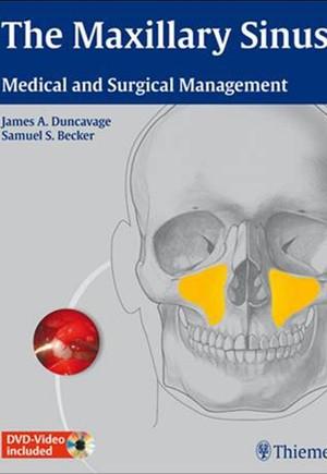 The Maxillary Sinus