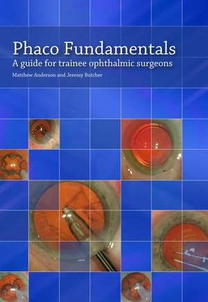 Phaco Fundamentals