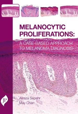 Melanocytic Proliferations
