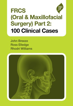 FRCS (Oral & Maxillofacial Surgery) Part 2: 100 Clinical Cases