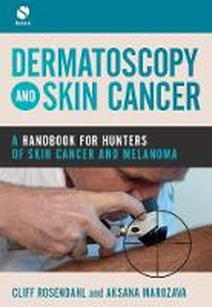 Dermatoscopy and Skin Cancer: A handbook for hunters of skin cancer and melanoma