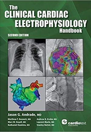The Clinical Cardiac Electrophysiology Handbook