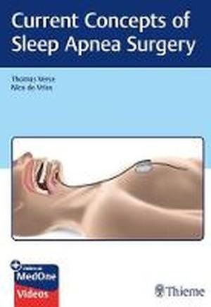 Current Concepts of Sleep Apnea Surgery