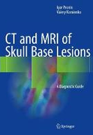 CT and MRI of Skull Base Lesions