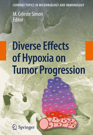 Diverse Effects of Hypoxia on Tumor Progression