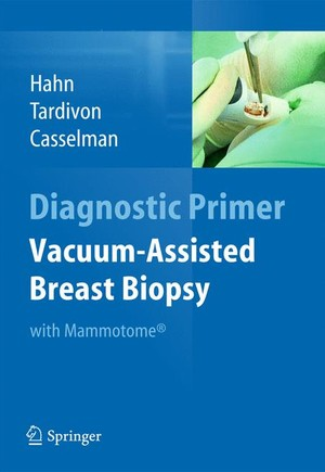 Vacuum-Assisted Breast Biopsy with Mammotome(R)