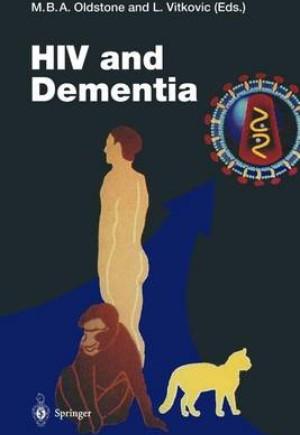 HIV and Dementia