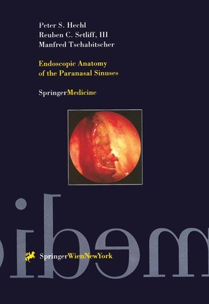 Endoscopic Anatomy of the Paranasal Sinuses