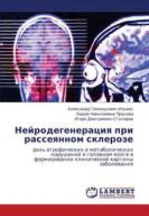 Энцефабол при рассеянном склерозе