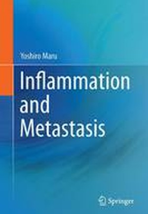 Inflammation and Metastasis 2016