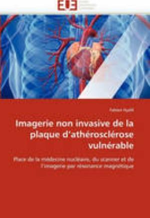 Imagerie Non Invasive de la Plaque d''ath roscl rose Vuln rable