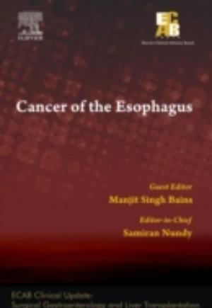 Cancer of the Esophagus - ECAB