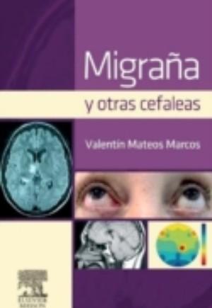 Migrana y otras cefaleas