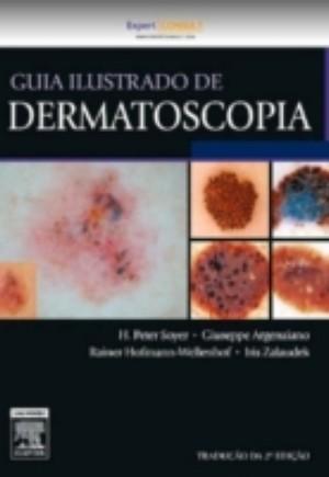 Guia Ilustrado De Dermatoscopia