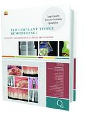 Peri-implant Tissue Remodeling