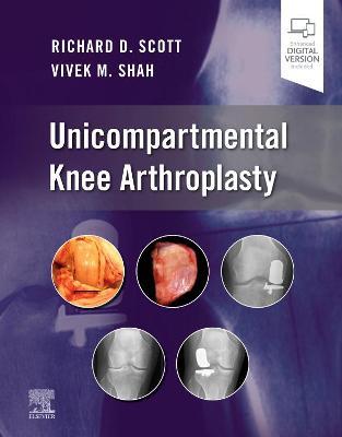 Unicompartmental Knee Arthroplasty