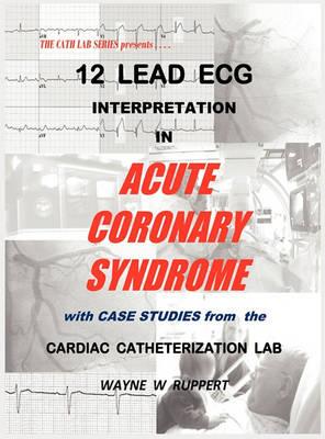 12 Lead ECG Interpretation in Acute Coronary Syndrome with Case Studies from the Cardiac Catheterization Lab