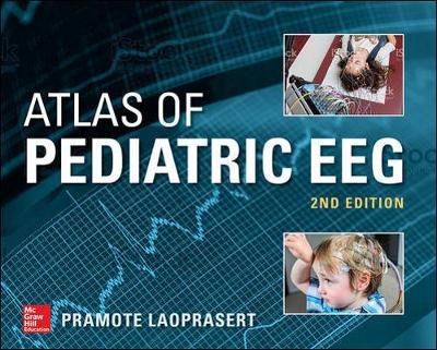 Atlas of Pediatric EEG