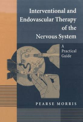 Interventional and Endovascular Therapy of the Nervous System
