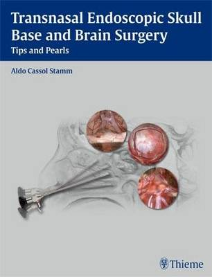 Transnasal Endoscopic Skull Base and Brain Surgery
