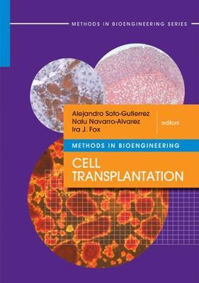 Methods in Bioengineering: Cell Transplantation