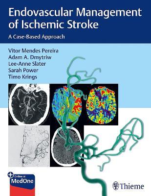 Endovascular Management of Ischemic Stroke