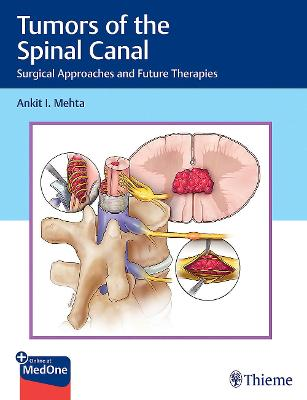 Tumors of the Spinal Canal