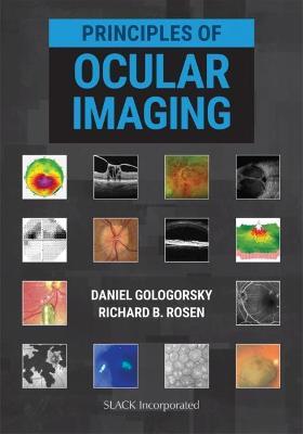 Principles of Ocular Imaging