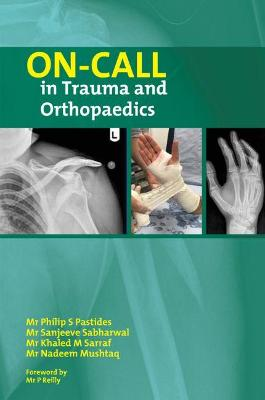 On Call in Trauma and Orthopaedics