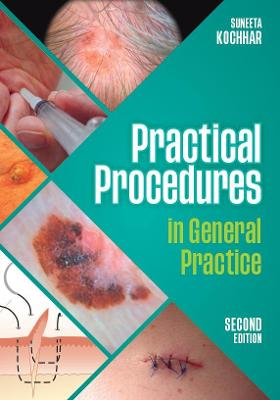 Practical Procedures in General Practice, second edition