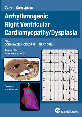Current Concepts in Arrhythmogenic Right Ventricular Cardiomyopathy / Dysplasia