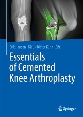 Essentials of Cemented Knee Arthroplasty