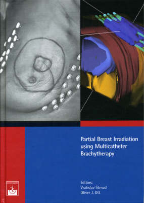 Partial Breast Irradiation Using Multicatheter Brachytherapy