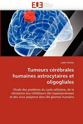 Tumeurs C r brales Humaines Astrocytaires Et Oligogliales