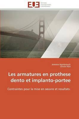 Les Armatures En Prothese Dento Et Implanto-Portee