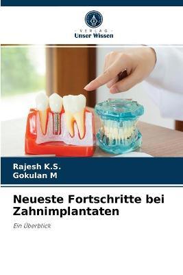 Neueste Fortschritte bei Zahnimplantaten
