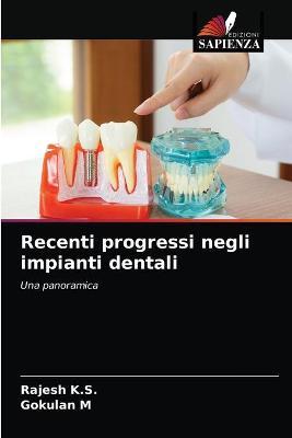 Recenti progressi negli impianti dentali