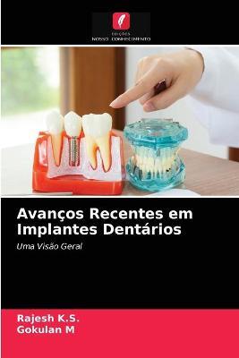 Avancos Recentes em Implantes Dentarios