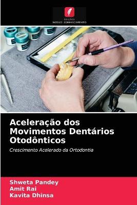 Aceleracao dos Movimentos Dentarios Otodonticos
