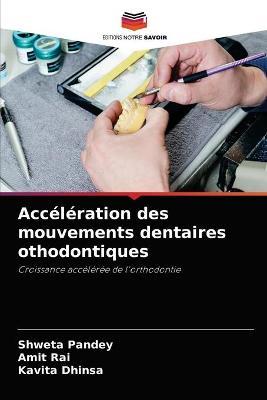 Acceleration des mouvements dentaires othodontiques