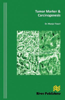 Tumor Marker & Carcinogenesis