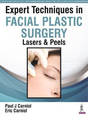 Expert Techniques in Facial Plastic Surgery